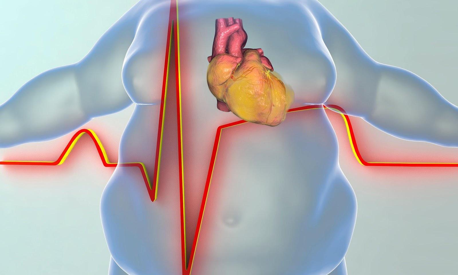 Nhu cầu dinh dưỡng của người mắc các bệnh tim mạch