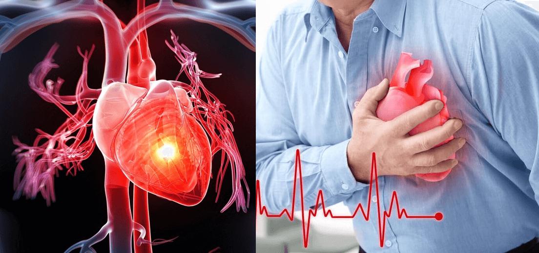 Sức Khỏe Tim Mạch Và Những Điều Bất Ổn Có Thể Bạn Chưa Biết